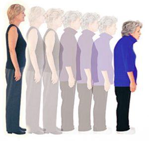osteoporoza, vzrok za boleča kolena